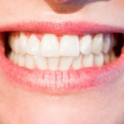 العناية بالأسنان
